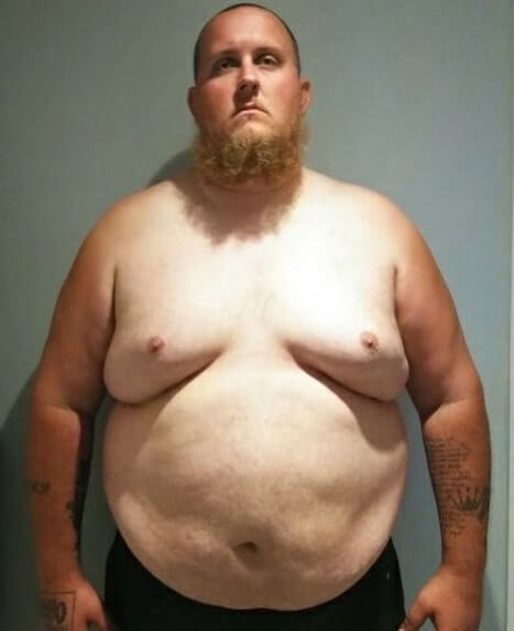 man in a before weight loss photo