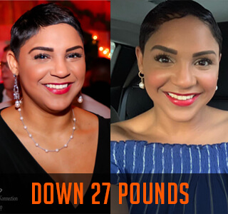 women smiling in weight loss before and after