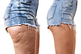 reduce-appearance-of-cellulite